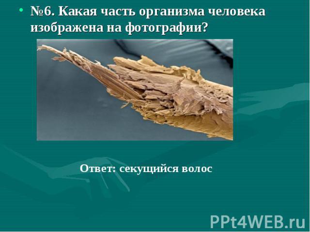 №6. Какая часть организма человека изображена на фотографии?Ответ: секущийся волос