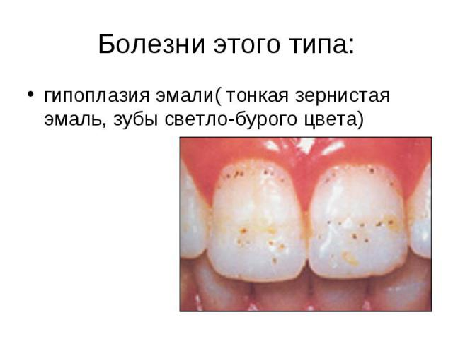 Болезни этого типа:гипоплазия эмали( тонкая зернистая эмаль, зубы светло-бурого цвета)
