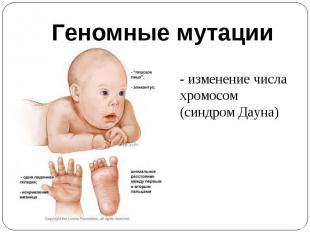 Геномные мутации- изменение числа хромосом (синдром Дауна)
