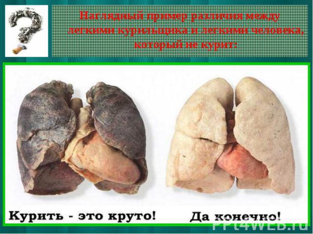 Наглядный пример различия между легкими курильщика и легкими человека, который не курит:
