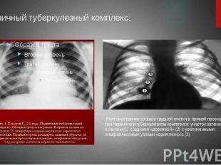 Первичный туберкулезный комплекс: