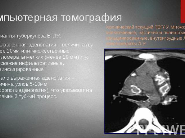 Компьютерная томография Варианты туберкулеза ВГЛУ: 1) выраженная аденопатия – величина л.у более 10мм или множественные конгломераты мелких (менее 10 мм) л.у, м.б свежие инфильтративные, казеинфицированные 2) мало выраженная аденопатия – величина уз…