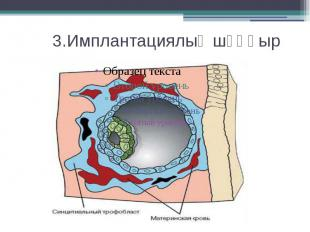 3.Имплантациялық шұңқыр