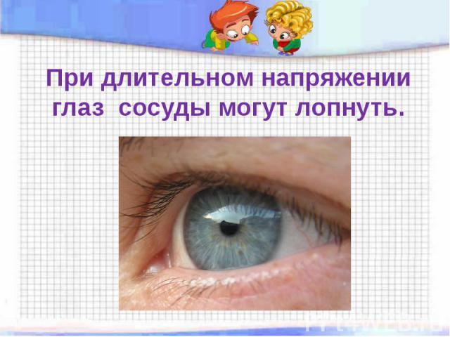 При длительном напряжении глаз сосуды могут лопнуть.