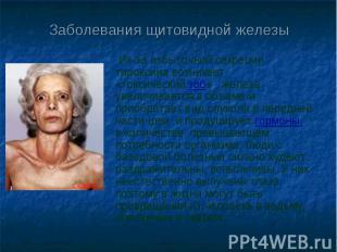 Заболевания щитовидной железы Из-за избыточной секреции тироксина возникает «ток