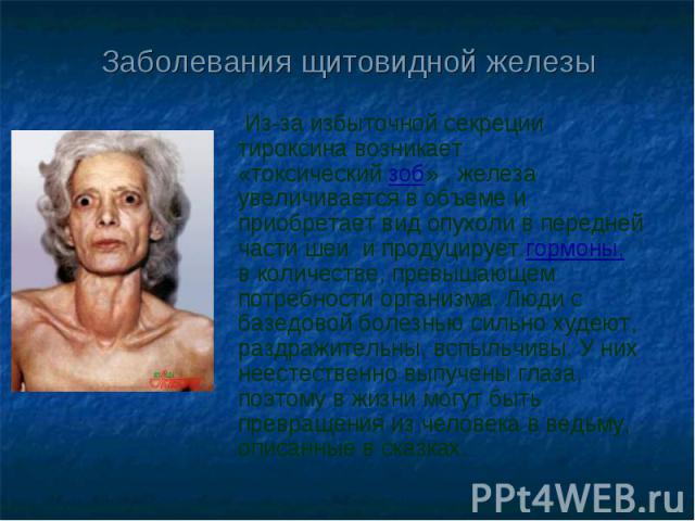 Заболевания щитовидной железы Из-за избыточной секреции тироксина возникает «токсическийзоб» , железа увеличивается в объеме и приобретает вид опухоли в передней части шеи ипродуцируетгормоны, вколичестве, превышающем потребности организма. Люд…