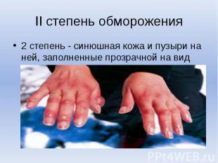 II степень обморожения2 степень - синюшная кожа и пузыри на ней, заполненные про