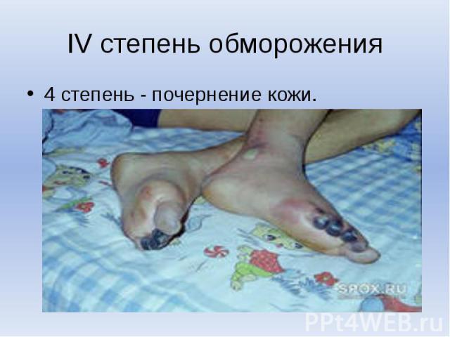 IV степень обморожения4 степень - почернение кожи.
