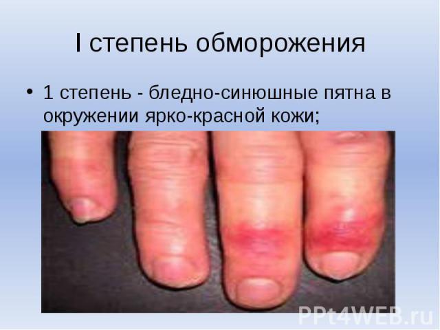 I степень обморожения1 степень - бледно-синюшные пятна в окружении ярко-красной кожи;