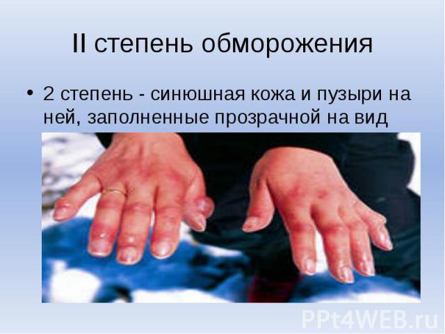 II степень обморожения2 степень - синюшная кожа и пузыри на ней, заполненные прозрачной на вид жидкостью;