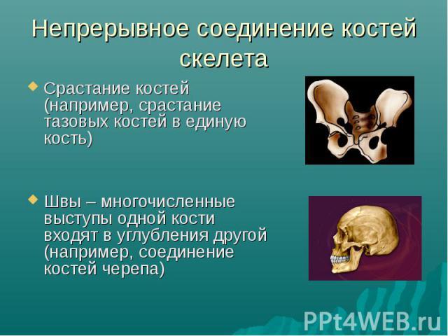 Непрерывное соединение костей скелета Срастание костей (например, срастаниетазовых костей в единую кость)Швы – многочисленные выступы одной кости входят в углубления другой (например, соединение костей черепа)