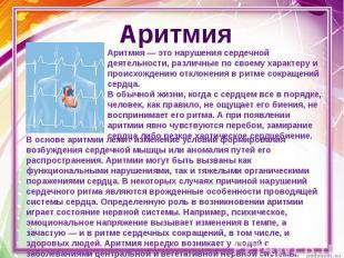 Аритмия Аритмия — это нарушения сердечной деятельности, различные по своему хара