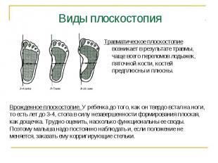 Виды плоскостопия Травматическое плоскостопие возникает в результате травмы, чащ