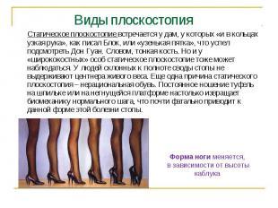 Виды плоскостопия Статическое плоскостопие встречается у дам, у которых «и в кол