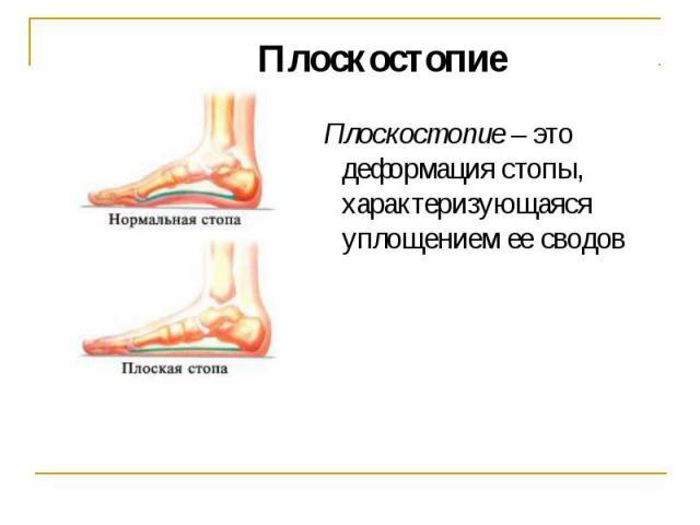 Плоскостопие Плоскостопие – это деформация стопы, характеризующаяся уплощением ее сводов