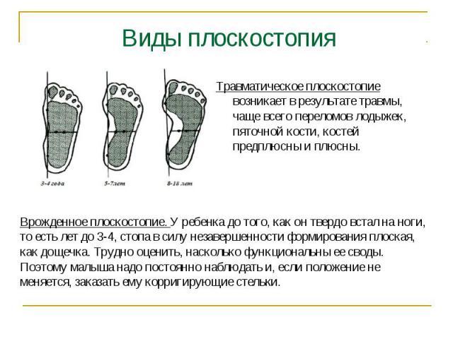 Виды плоскостопия Травматическое плоскостопие возникает в результате травмы, чаще всего переломов лодыжек, пяточной кости, костей предплюсны и плюсны. Врожденное плоскостопие. У ребенка до того, как он твердо встал на ноги, то есть лет до 3-4, стопа…