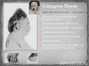 Синдром Патау Одна лишняя аутосома – трисомия 13Микроцефалия (уменьшение головно