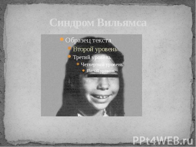 Синдром Вильямса