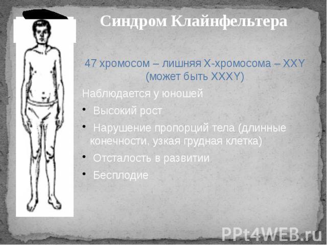Синдром Клайнфельтера 47 хромосом – лишняя Х-хромосома – ХХY (может быть ХХХY)Наблюдается у юношей Высокий рост Нарушение пропорций тела (длинные конечности, узкая грудная клетка) Отсталость в развитии Бесплодие