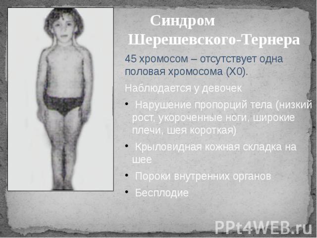Синдром Шерешевского-Тернера 45 хромосом – отсутствует одна половая хромосома (Х0). Наблюдается у девочек Нарушение пропорций тела (низкий рост, укороченные ноги, широкие плечи, шея короткая) Крыловидная кожная складка на шее Пороки внутренних орган…