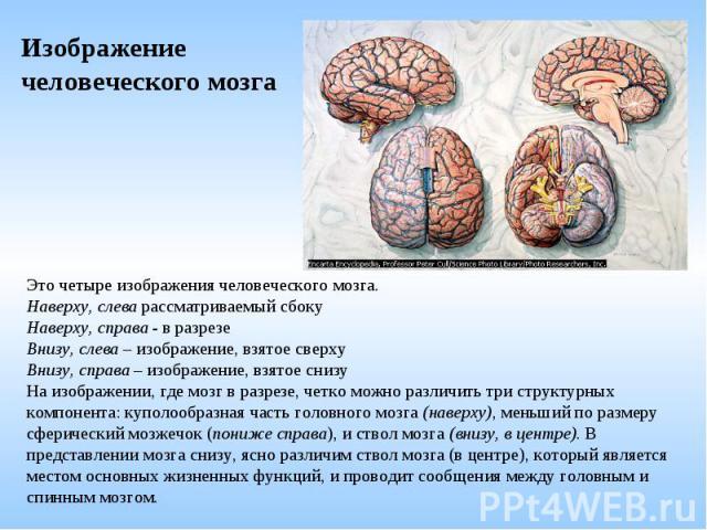 Изображение человеческого мозга Это четыре изображения человеческого мозга. Наверху, слева рассматриваемый сбоку Наверху, справа - в разрезе Внизу, слева – изображение, взятое сверху Внизу, справа – изображение, взятое снизу На изображении, где мозг…
