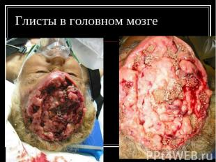 Глисты в головном мозге