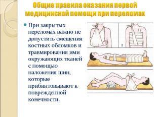 Общие правила оказания первой медицинской помощи при переломах При закрытых пере
