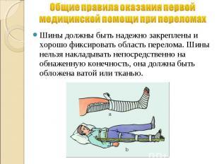Общие правила оказания первой медицинской помощи при переломах Шины должны быть