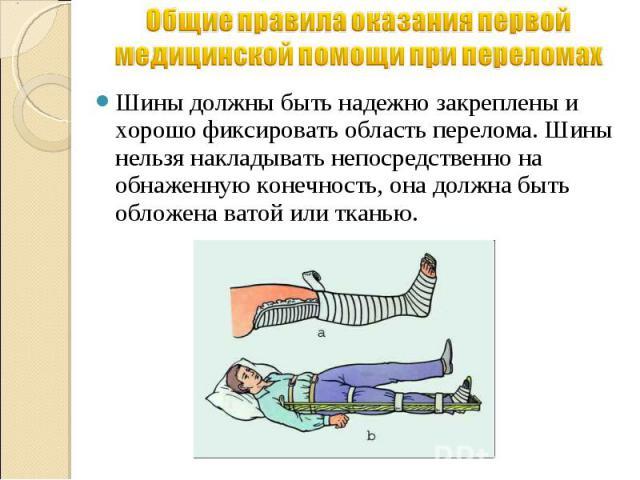 Общие правила оказания первой медицинской помощи при переломах Шины должны быть надежно закреплены и хорошо фиксировать область перелома. Шины нельзя накладывать непосредственно на обнаженную конечность, она должна быть обложена ватой или тканью.