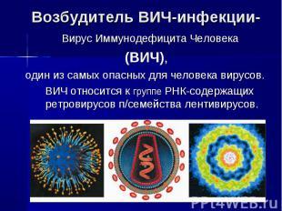 Возбудитель ВИЧ-инфекции- Вирус Иммунодефицита Человека (ВИЧ),один из самых опас