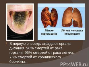 В первую очередь страдают органы дыхания. 98% смертей от рака гортани, 96% смерт