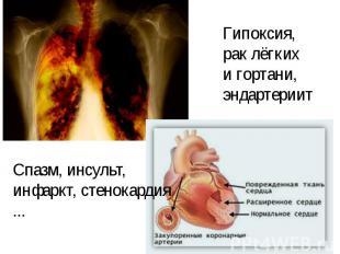 Гипоксия,рак лёгких и гортани,эндартериит Спазм, инсульт,инфаркт, стенокардия ..
