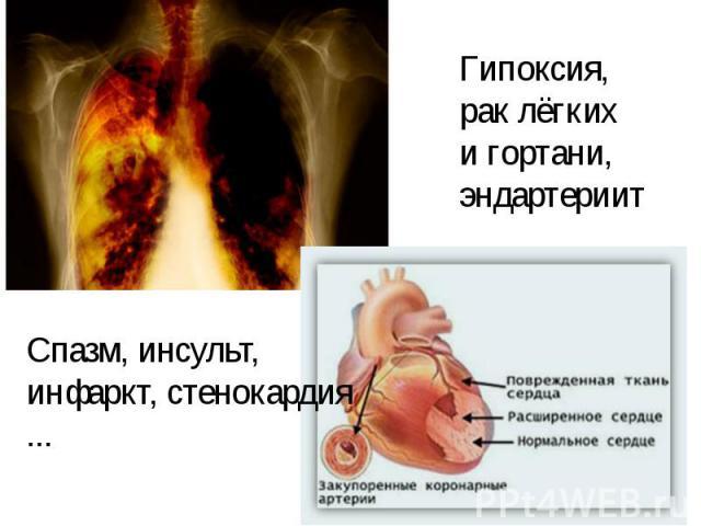 Гипоксия,рак лёгких и гортани,эндартериит Спазм, инсульт,инфаркт, стенокардия ...