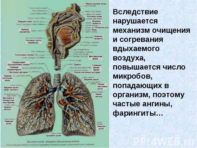 Вследствие нарушается механизм очищения и согревания вдыхаемого воздуха, повышается число микробов, попадающих в организм, поэтому частые ангины, фарингиты…