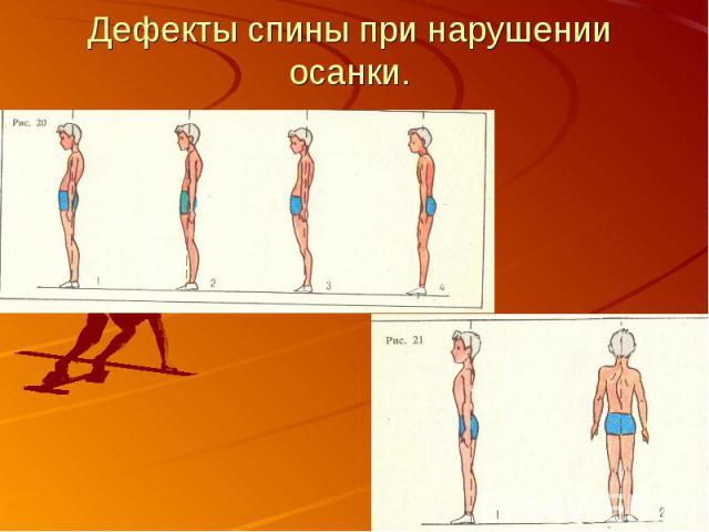 Дефекты спины при нарушении осанки.