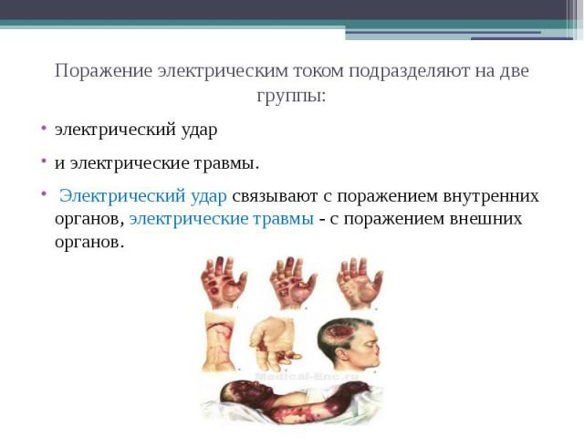 электрический удар и электрические травмы. Электрический удар связывают с поражением внутренних органов, электрические травмы - с поражением внешних органов.