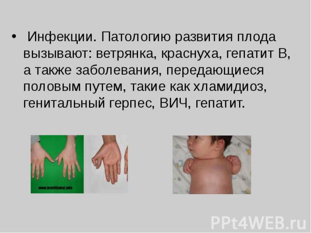 Инфекции. Патологию развития плода вызывают: ветрянка, краснуха, гепатит В, а также заболевания, передающиеся половым путем, такие как хламидиоз, генитальный герпес, ВИЧ, гепатит.