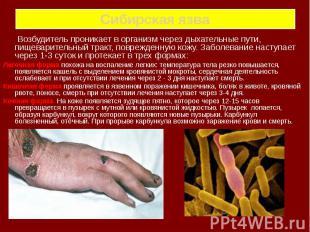 Сибирская язва Возбудитель проникает в организм через дыхательные пути, пищевари