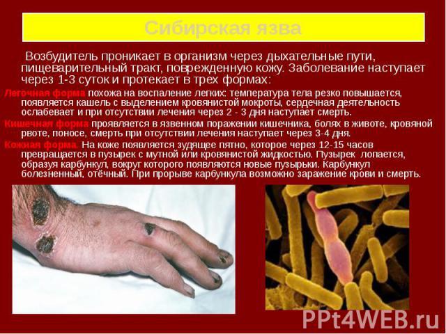Сибирская язва Возбудитель проникает в организм через дыхательные пути, пищеварительный тракт, поврежденную кожу. Заболевание наступает через 1-3 суток и протекает в трех формах: Легочная форма похожа на воспаление легких: температура тела резко пов…