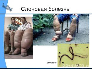 Слоновая болезнь