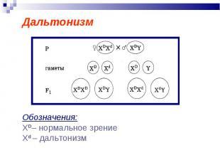 Дальтонизм Обозначения: ХD– нормальное зрениеXd – дальтонизм