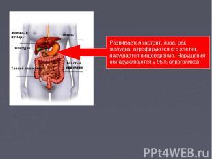 Развивается гастрит, язва, рак желудка; атрофируются его клетки, нарушается пище