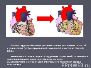 Размер сердца алкоголика увеличен за счет увеличения полостей и разрастания (не