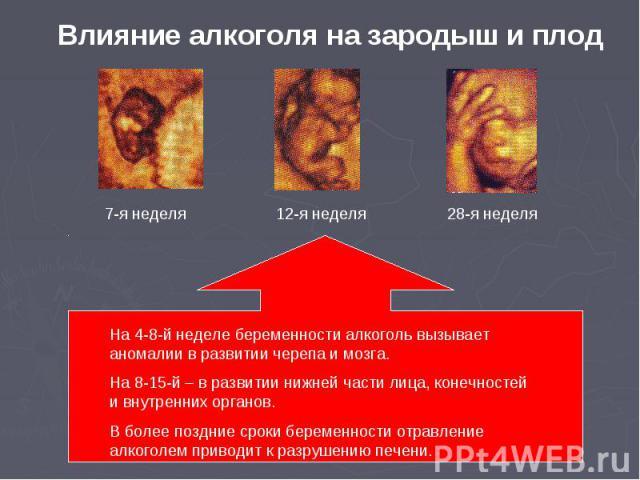 Влияние алкоголя на зародыш и плод На 4-8-й неделе беременности алкоголь вызывает аномалии в развитии черепа и мозга.На 8-15-й – в развитии нижней части лица, конечностей и внутренних органов.В более поздние сроки беременности отравление алкоголем п…