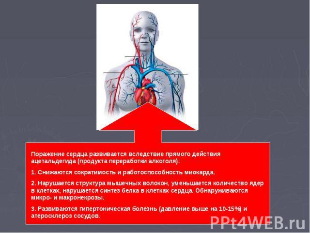 Поражение сердца развивается вследствие прямого действия ацетальдегида (продукта переработки алкоголя):1. Снижаются сократимость и работоспособность миокарда. 2. Нарушается структура мышечных волокон, уменьшается количество ядер в клетках, нарушаетс…