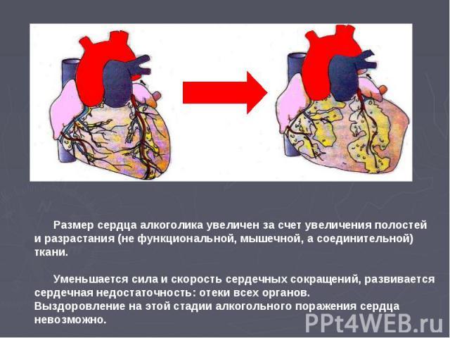 Размер сердца алкоголика увеличен за счет увеличения полостей и разрастания (не функциональной, мышечной, а соединительной) ткани. Уменьшается сила и скорость сердечных сокращений, развивается сердечная недостаточность: отеки всех органов. Выздоровл…