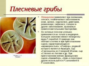 Плесневые грибы Пенициллин применяют при пневмонии, сепсисе, гнойничковых заболе