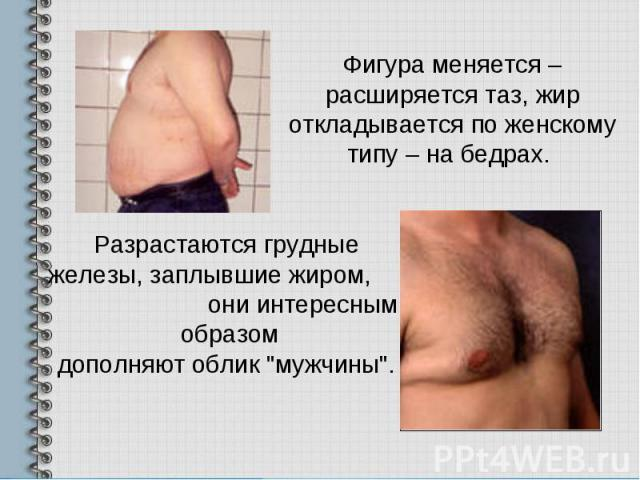Фигура меняется – расширяется таз, жир откладывается по женскому типу – на бедрах. Разрастаются грудные железы, заплывшие жиром, они интересным образомдополняют облик