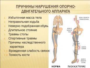 Причины нарушения опорно-двигательного аппарата Избыточная масса телаНеправильна