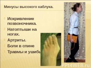 Минусы высокого каблука. Искривление позвоночника.Натоптыши на ногах.Артриты.Бол